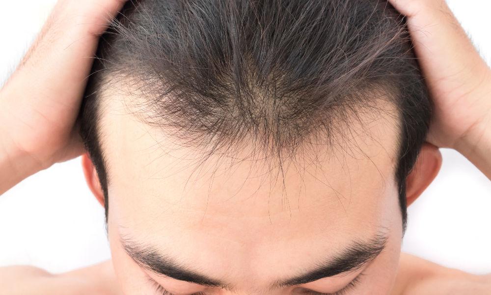 Trapianto capelli Firenze | Autotrapianto tecnica FUE ...